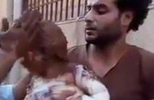 Suriyeli çocuğun acısı yürekleri dağladı